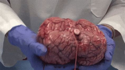 Brain GIF - Find & Share on GIPHY